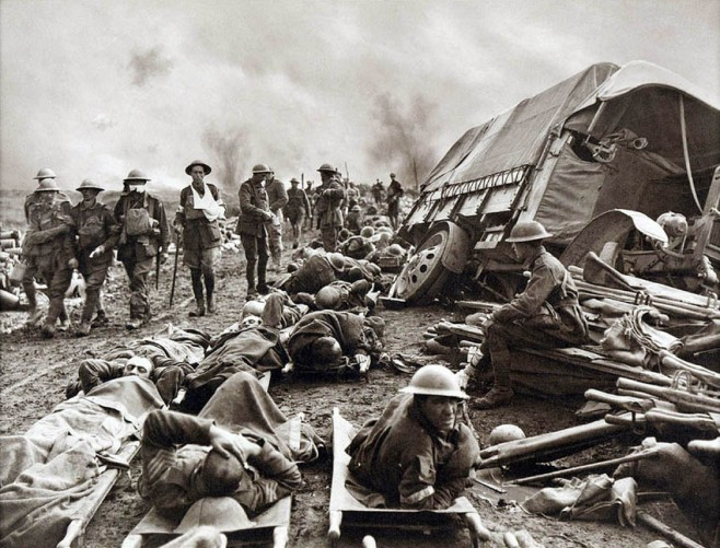Battle of Menin Road, Wounded at Side of the Road